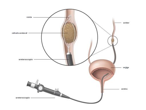 Ureterolitotomía Endoscopica