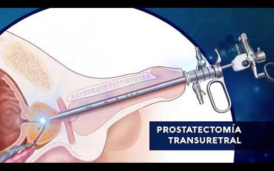 ¿Qué es una prostatectómia? ¿Qué tipos de cirugía de próstata existen?
